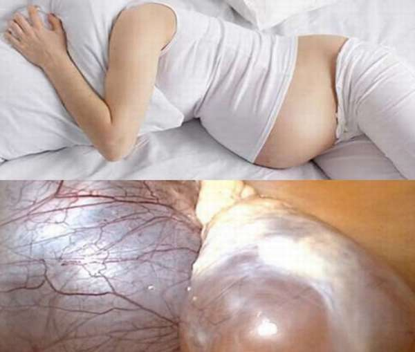 Как влияет параовариальная киста яичника на беременность