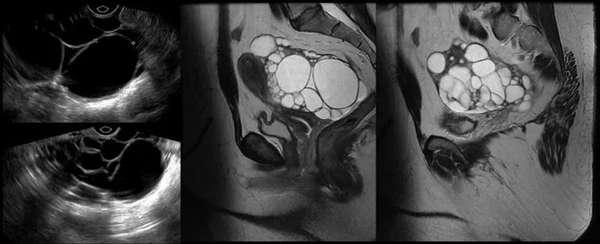 Лечение двухкамерной кисты яичника симптомы патологии