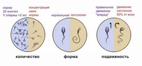 Подробные правила сдачи спермограммы
