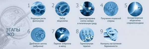 Этапы ЭКО