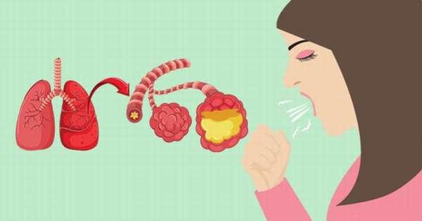 Воспаление лёгких относится к тяжёлым заболеваниям