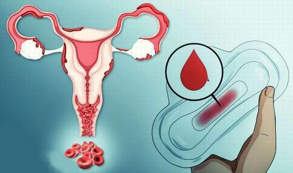 Причины и симптомы маточного кровотечения