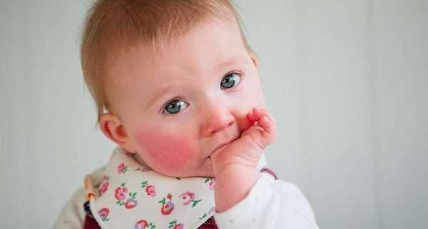 Зачем нужна диета при пищевой аллергии у детей