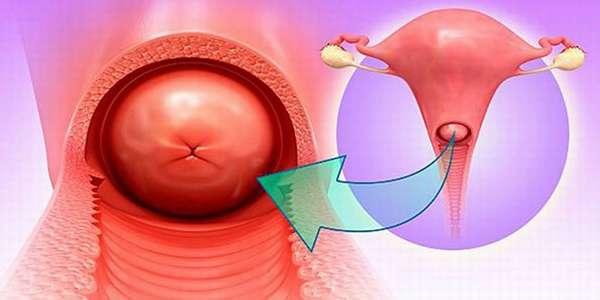 Хронический и острый цервицит воспалительный процесс слизистой оболочки шейки матки