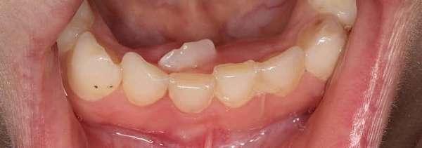 Молочные зубы у детей: схема выпадения