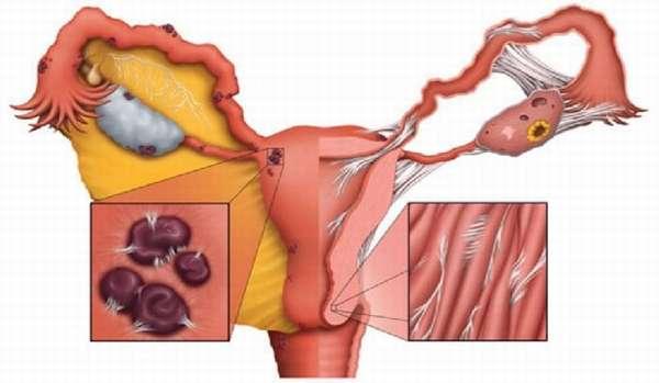 Спайки после лапароскопии кисты яичника после операции на яичнике