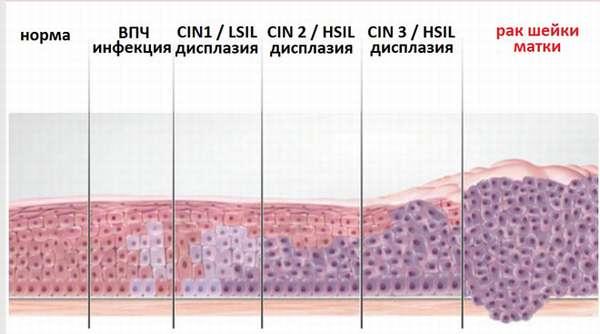 Патология шейки матки список заболеваний
