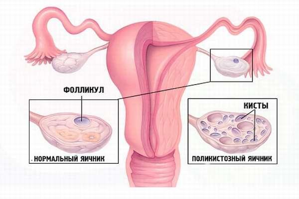 Поликистозные яичники у женщины при беременности