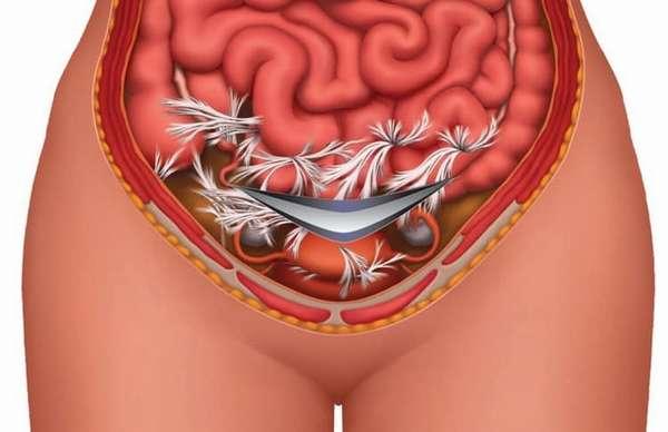 На фото вы можете увидеть, как выглядят спайки после кесарева сечения, а также простите о симптомах этого недуга.