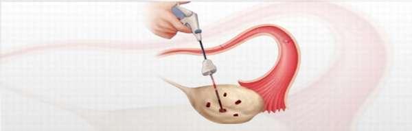 Проведение электрокоагуляции при гиперплазии яичников