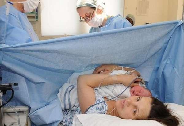Узнайте, какие есть показания к кесареву сечению при беременности.