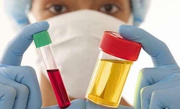 Сдача анализов крови и мочи при хроническом оофорите