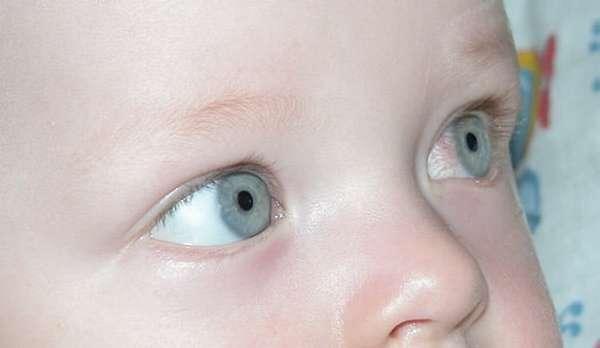 в каких случаях применяют сироп для детей ацикловир