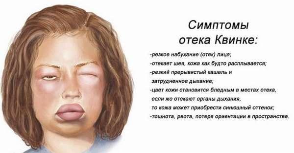 Осложнения прививки пентаксим