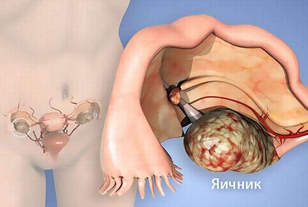 Признаки рака яичников у женщин и первые симптомы заболевания