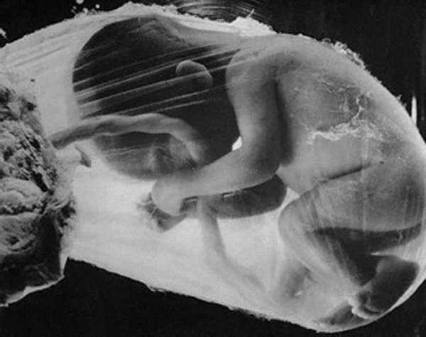 гипотрофия плода при беременности
