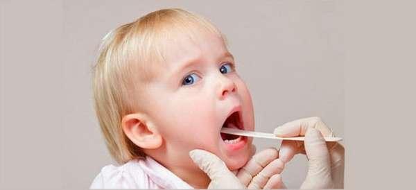 основные признаки ларингита у детей