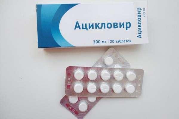 Таблетки Ацикловир детям при ветрянке могут назначить только в особо тяжелых случаях.