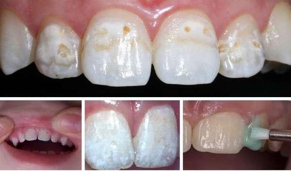 Вместо того, чтобы посеребрить зубы ребенку, можно выбрать и процедуру реминерализации.