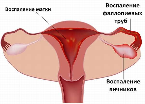 Кровянистые выделения после удаления матки
