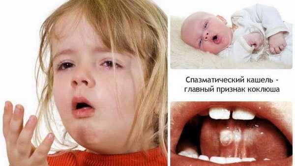 сильный кашель у ребенка без температуры