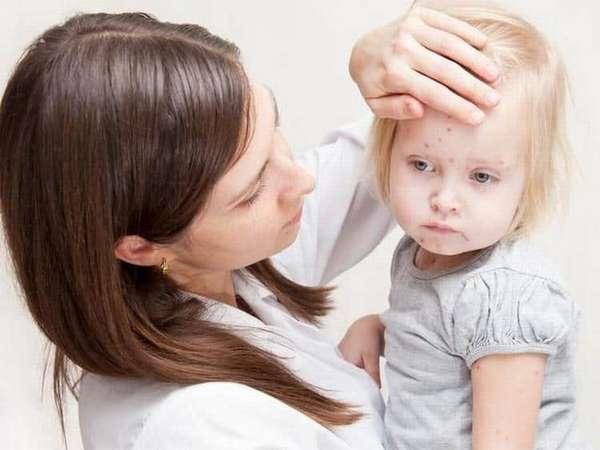 Препарат также обладает небольшим списком побочных эффектов.