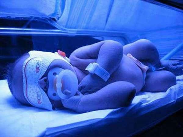 Если показатели билирубина слишком высокие, малышу проводят специальную фототерапию.