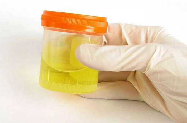 Чтобы следить за нормой лейкоцитов в моче у беременных женщин, врачи регулярно назначают сдачу анализа.