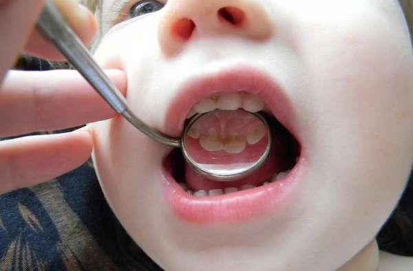 Есть достаточно много положительных отзывов о серебрении зубов у детей.