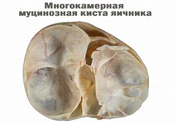Кистома яичников больших размеров необходимость операции