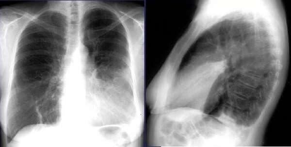 Что такое язычковая (лингвальная) пневмония. Как лечат детей и взрослых?