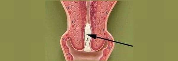 как выглядит на фото слизистая пробка при беременности
