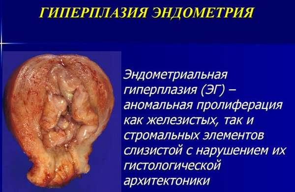 Признаки гиперпластического процесса эндометрия смешанная форма