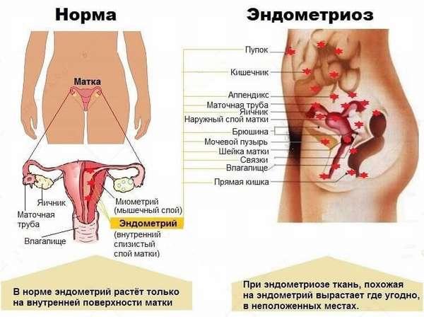 Отзывы о лечении эндометриоза Визанной после лапароскопии