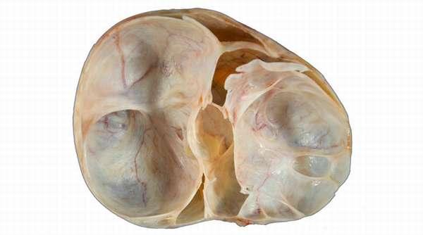 Многокамерное кистозное образование яичника