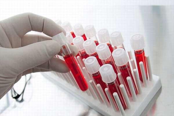 Синдром поликистозных яичников клинические рекомендации