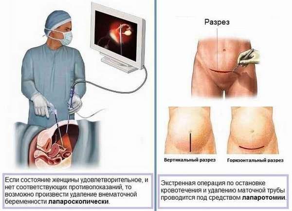 внематочная беременность последствия после операции