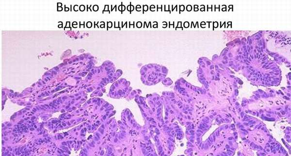 Умеренно дифференцированная аденокарцинома эндометрия