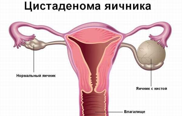 Классификация цистаденомы яичника оперативное вмешательство и прогноз