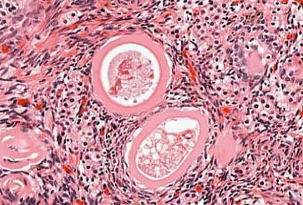 Отличительные особенности текомы яичника на фоо