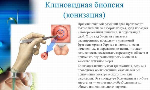 Биопсия шейки матки как и зачем делают, показания к проведению анализа