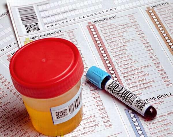 Признаки аднексита: определяем причины патологии, эффективная терапия