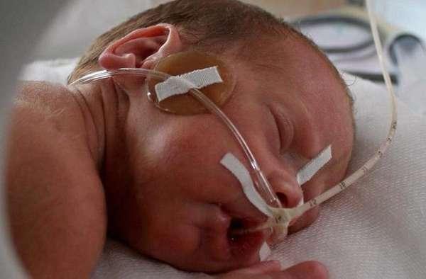 При тяжелой степени гипоксии ребенка сразу отправляют в реанимацию.