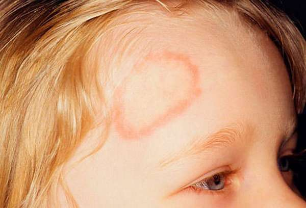 Не всегда лишай локализируется на волосяной части головы, он может быть и на лице, и на руках.