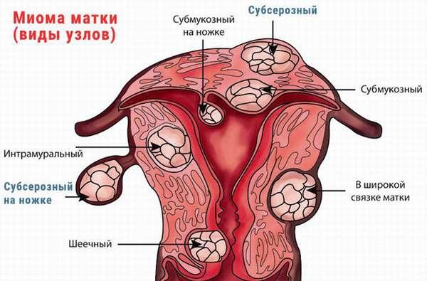Интрамуральная лейомиома матки что это такое