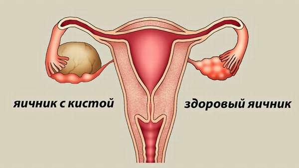 Лечение придатков и кисты яичника прибором Алмаг