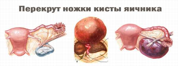 Лечение геморрагической кисты яичника