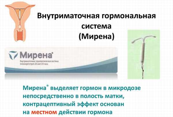 Медикаментозное лечение гиперплазия матки определение симптомов