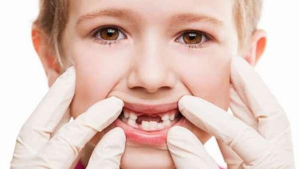 какие зубы выпадают у детей