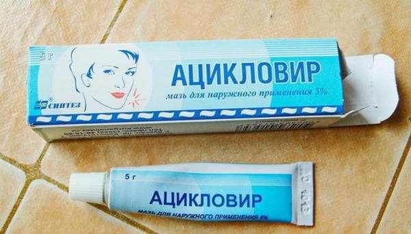 Если болезнь протекает тяжело, врач может также назначить Ацикловир.